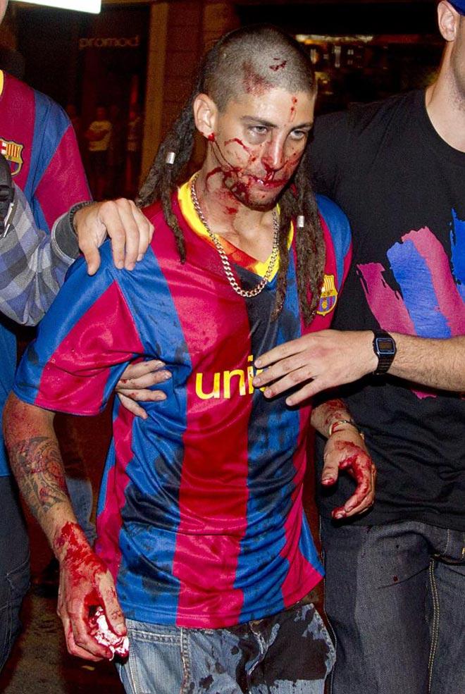 Casi 90 personas han resultado heridas, dos de ellas graves, y varias decenas han sido detenidas en los incidentes ocurridos durante la celebraci�n de la victoria del Barcelona, de la que ha salido ilesa la acampada de los indignados.