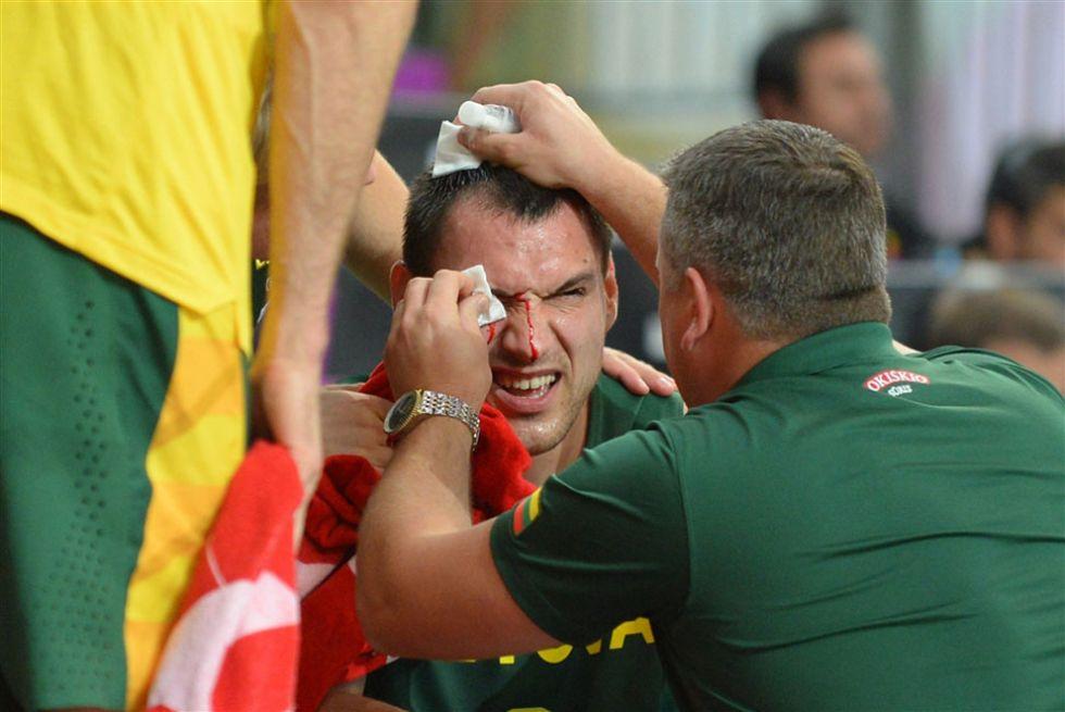 Lograr pasar a los cuartos del Mundial no es sencillo. Los equipos tuvieron que esforzarse al máximo, dejándose la piel. En algunos casos, como en el del lituano Maciulis, fue literal.