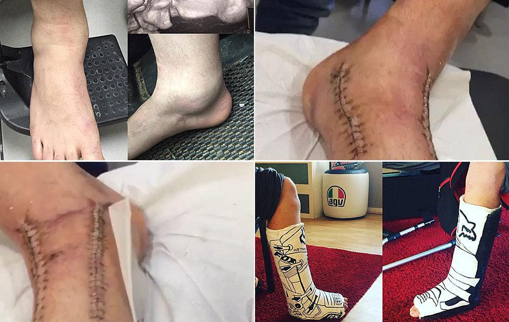 fractura de tobillo tibia y perone tiempo de recuperacion