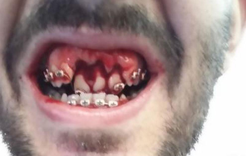 La boca de Diego Bardanca, con los dientes desplazados