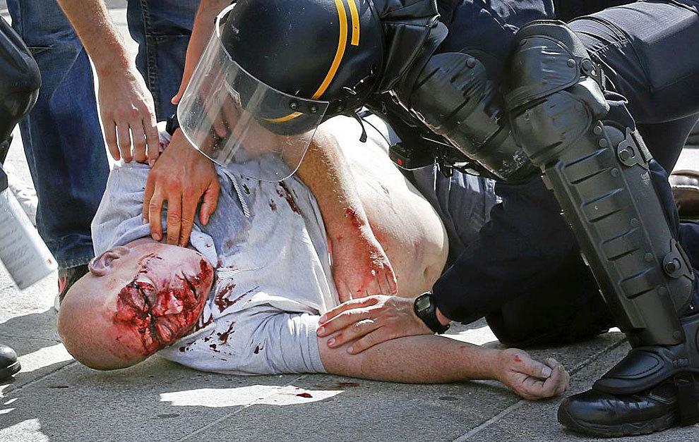 Un aficionado inglés agredido en los enfrentamientos de Marsella.