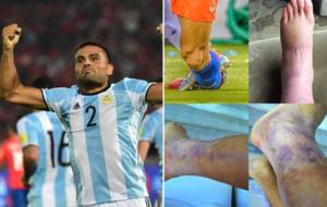 Gabriel Mercado y el tobillo de Alexis