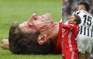 El delantero del Bayern se llev� un codazo de Hector.