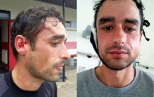 Montaje de las dos heridas que ha sufrido el jugador Alberto Mier...
