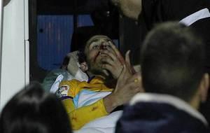 Unai Elguezabal, sangrando por la nariz, en la ambulancia en la que...
