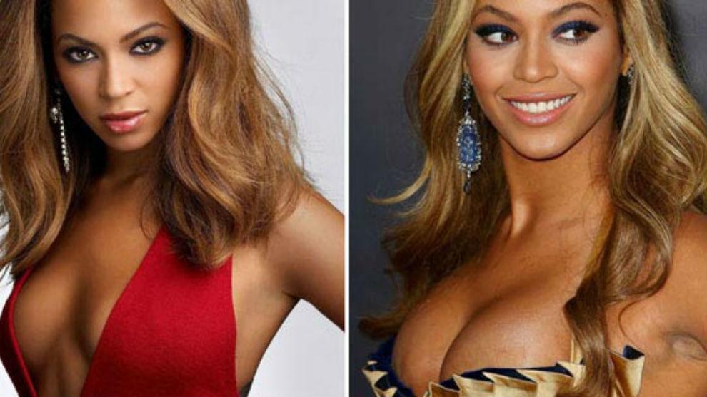 Beyonce butt implants