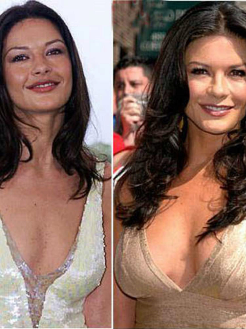 Before after breast and augmentation pictures