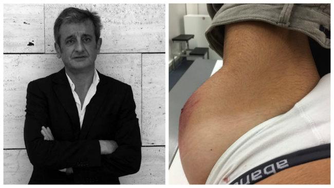 Luis Moya, con la inflamación que le provocó el golpe en la cadera...