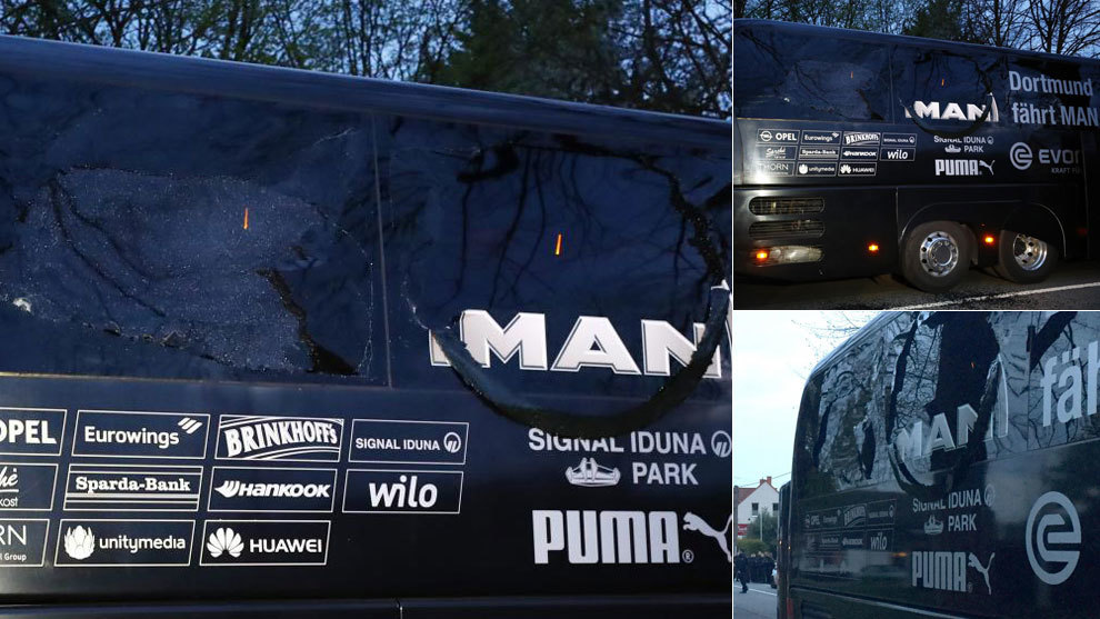El vehículo del conjunto borussen fue atacado camino del estadio.