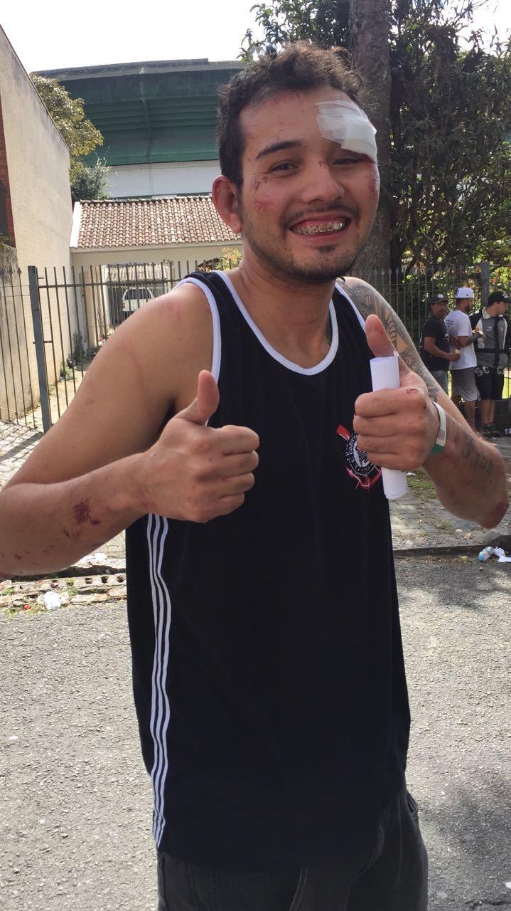 Así quedó Jonatan José Gomes Souza da Silva tras la paliza.