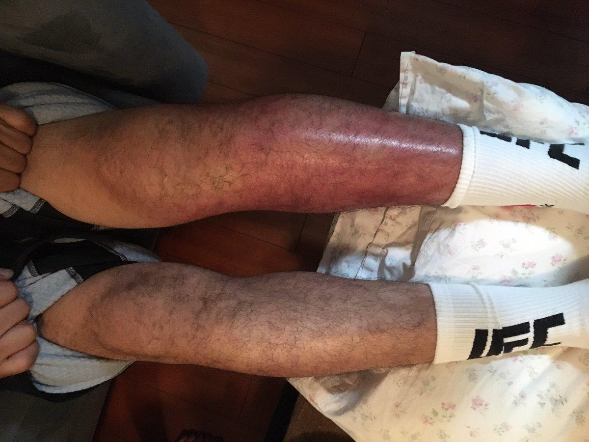 El estado de la pierna de Gilbert 'El Niño' Meléndez tras su pelea...