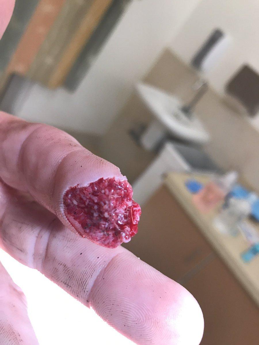 Imagen de Ed Herman con la falange de su dedo amputada
