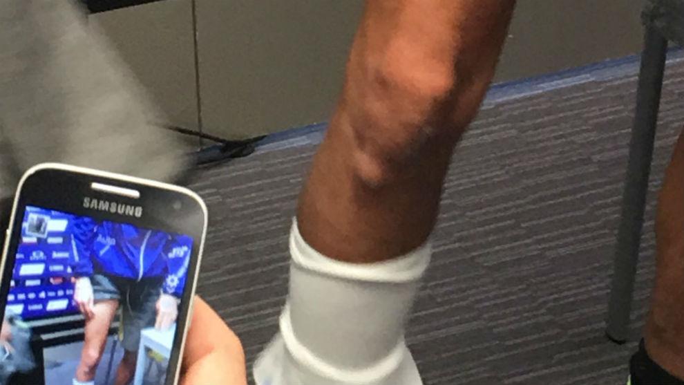 Valentino enseña la fractura de su pierna derecha, sonde se ve asomar...