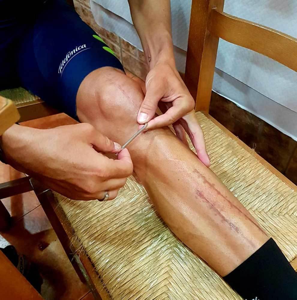 Alejandro Valverde mostrando las cicatrices de su pierna