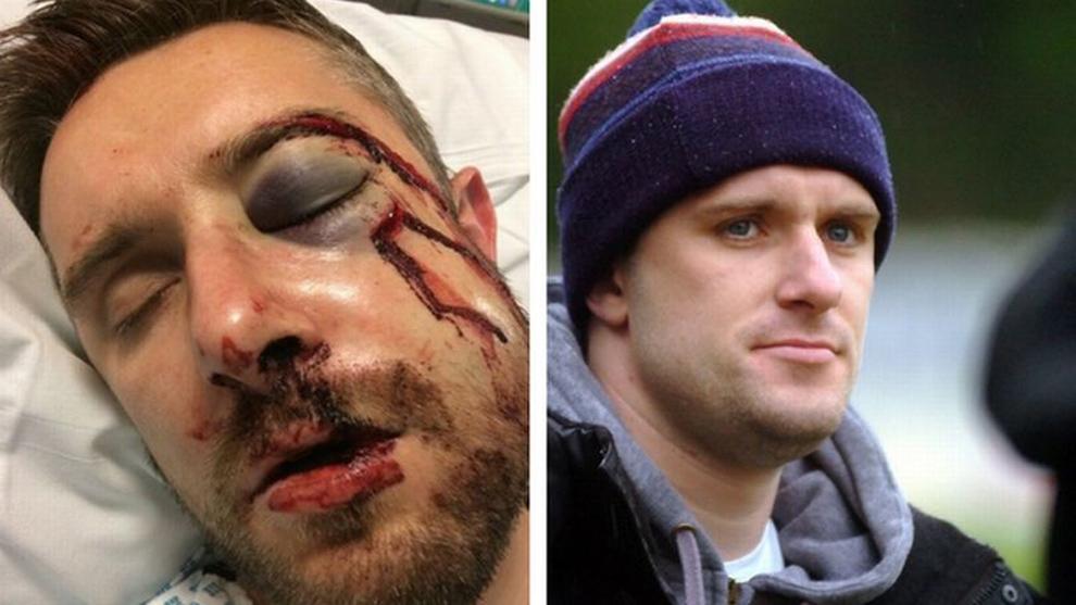 El futbolista Adam Yates antes y después de la lesión