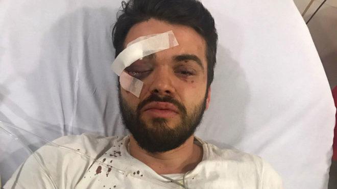 Jonathan Uriel Castellari, en el hospital.