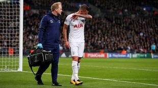 Toby Alderweireld se retira lesionado en el partido contra el Madrid.