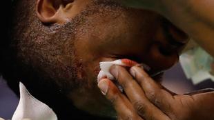 Derrick Favors se limpia la sangre tras recibir un golpe