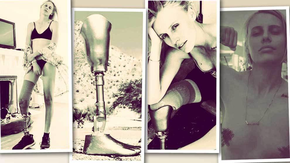 Lauren Wasser, la modelo y actriz de 29 años que  en...