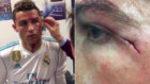 La intrahistoria en el vestuario tras la brecha de Cristiano Ronaldo