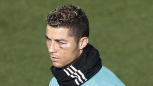 Cristiano Ronaldo, con el ojo morado tras el golpe ante el Deportivo