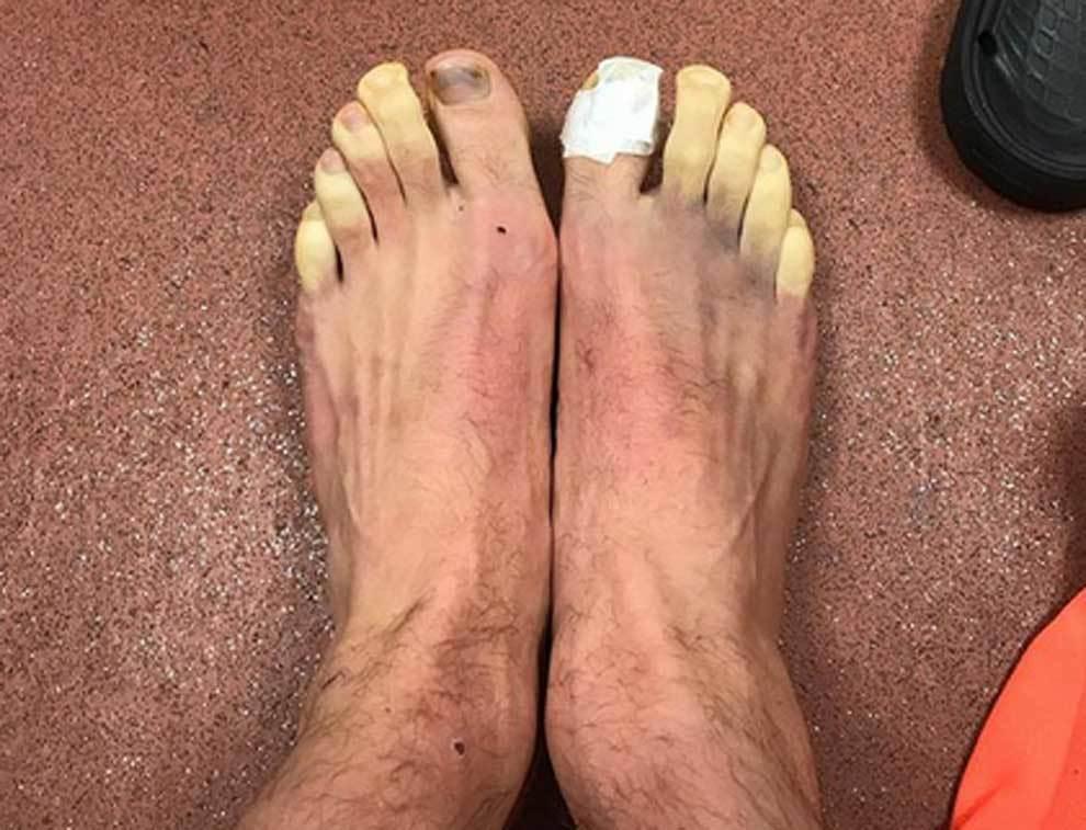 Imagen sin filtros de los pies congelados de Lallana
