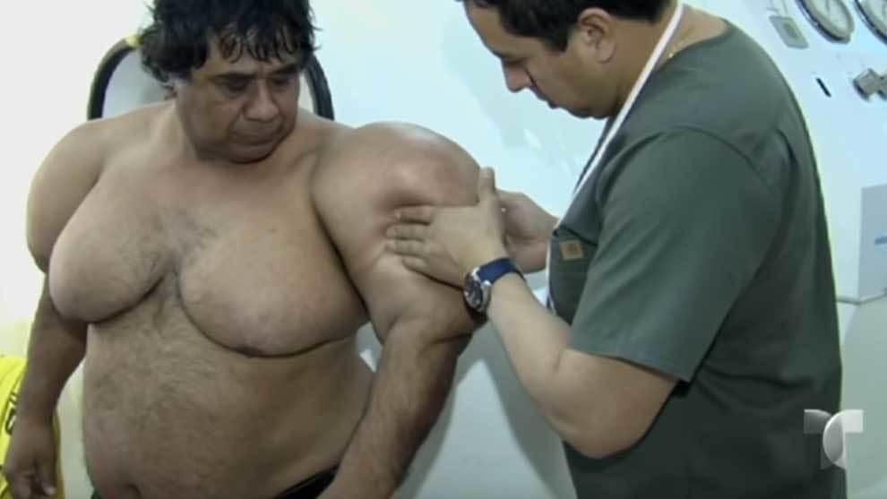 Alejandro Ramos, el pescador peruano que sufrió un accidente en su...