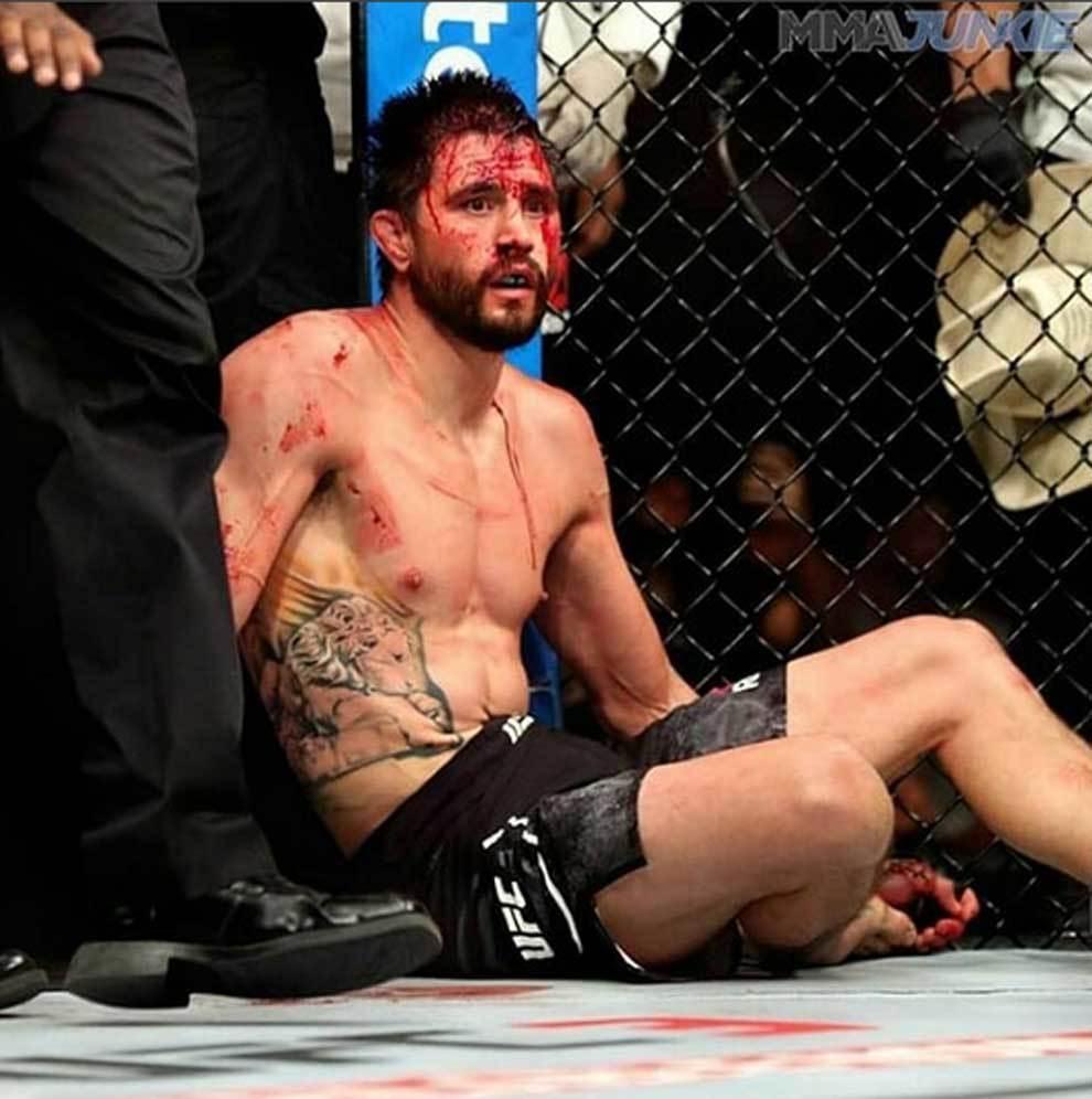 Carlos Condit derrotado y ensangrentado tras perder contra Alex...