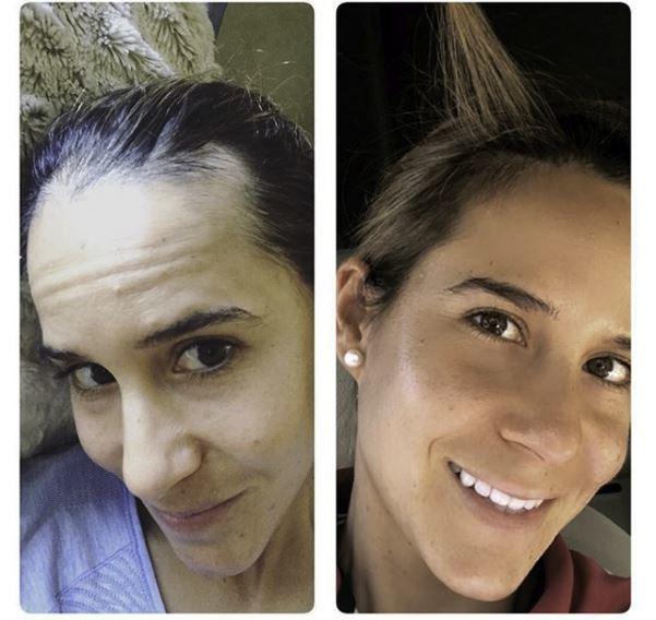 Azahara antes de iniciar su tratamiento (derecha) y después de...