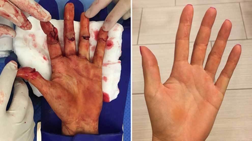 La mano herida de Petra Kvitova tras ser asaltada con un cuchillo en...
