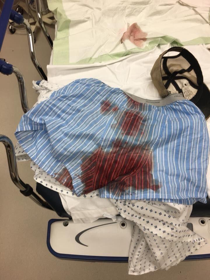 La ropa interior del luchador Bryce Mitchell tras rasgarse el escroto...