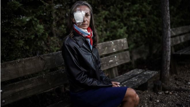 La francesa Corine Remande, de 49 años, con el ojo vendado tras el...