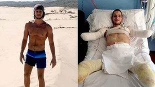 Davide antes y después de la meningitis.