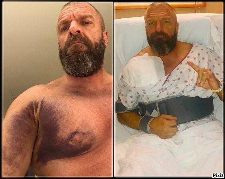 Triple H mostrando su músculo pectoral desgarrado y una imagen...