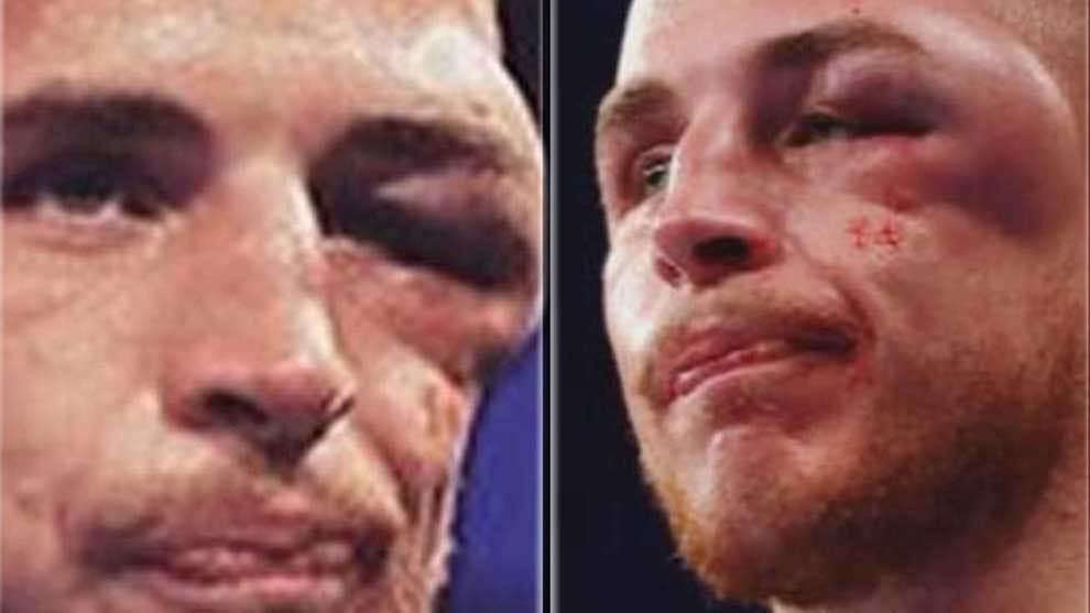 El boxeador Sam Hyde sufrió una lesión en el ojo durante su pelea...