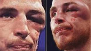 Boxer Sam Hyde suffered an injury to his eye during the fight against...