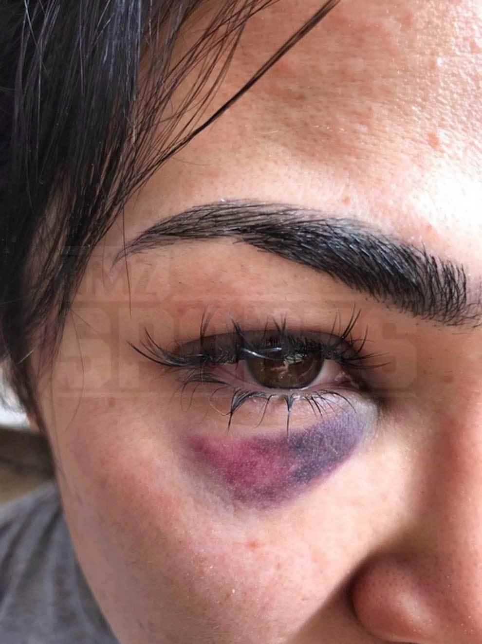 Rachael Ostovich muestras las brutalmente imágenes de la agresión que sufrió de su marido