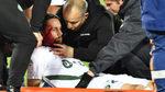 Sobrecogedor golpe de Subotic en la cabeza en el Girondins-Saint-Étienne