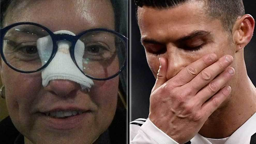 "The ""champion"" reaction of Cristiano Ronaldo after a fan is hit by a wild shot"