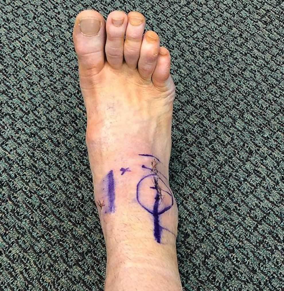 La cicatriz en el pie de Travis Browne tras pasar por el quirófano