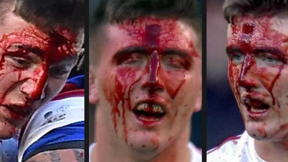 La frente sangrando de Tom Curry fue el símbolo del contundente...