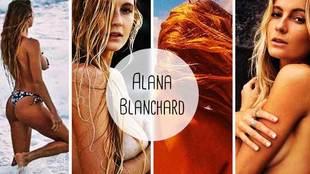 The surfer Alana Blanchard uploads topless photos to social media