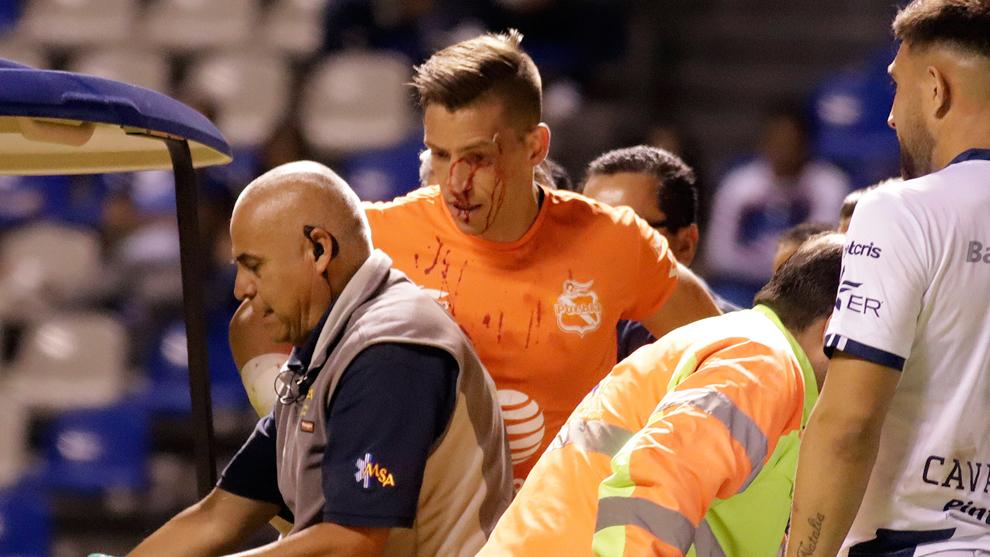 Vikonis tuvo que ser sustituido por su herida en la cara.