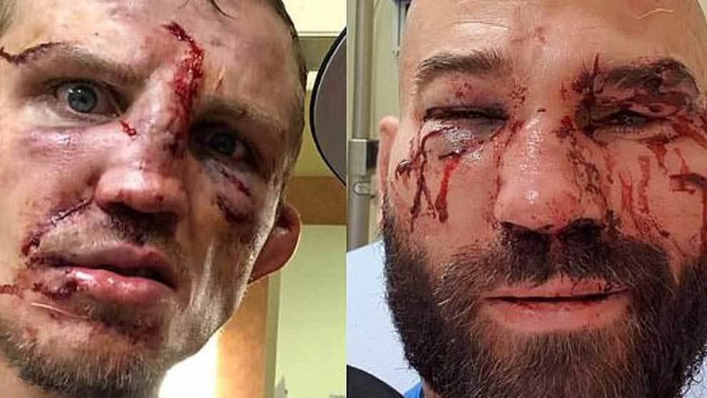 Las caras de Jason Knight y Artem Lobov tras su pelea de boxeo sin...