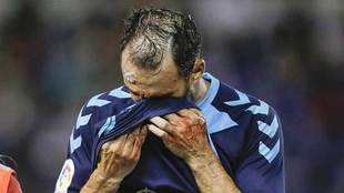Gentiletti, ensangrentado, tras un choque en el Helidoro durante el...
