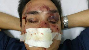 Así quedó el rostro del periodista argentino tras la brutal paliza...