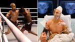 El brutal KO que casi termina en desgracia tras una operación de 9 horas: