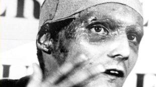 Lauda ofreciendo una rueda de prensa el día que abandonó el hospital