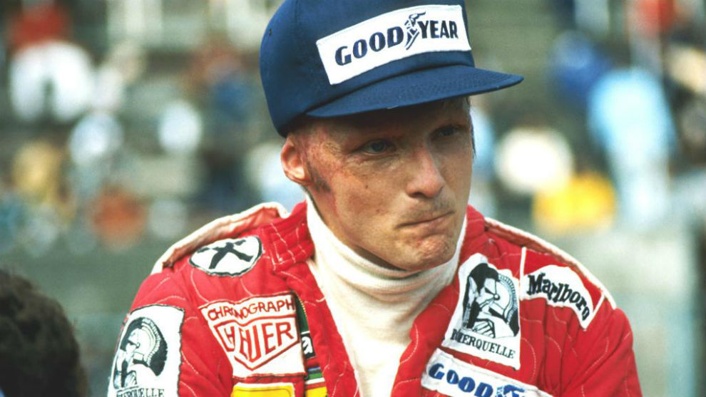 Lauda in 1976 at Monza after his accident at the Nurburgring.