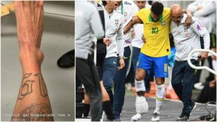 Neymar mostró en Instagram el estado de su tobillo derecho.